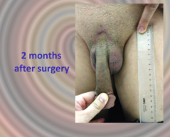 Case report №10 - Ligamentotomy (Penile Enlargement)