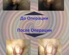 Увеличение полового члена в Хабаровске